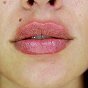 labios